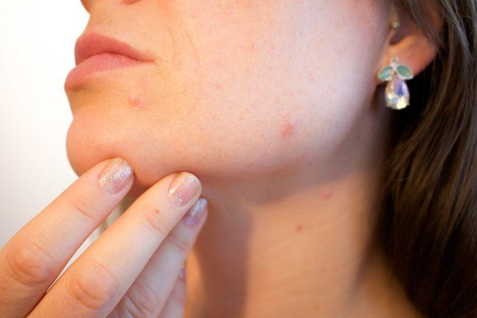 Natuurlijke behandeling van acne