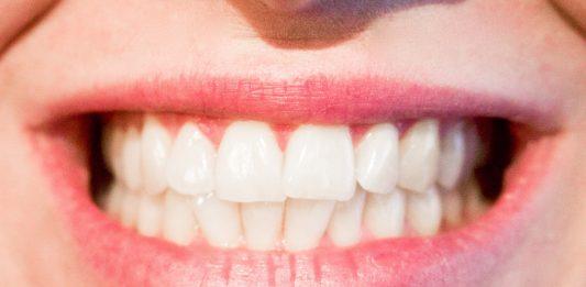 tips om mooiere, sterkere en gezondere tanden te krijgen