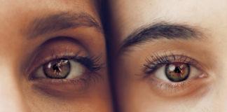 5 Manieren om op natuurlijke wijze donkere kringen onder de ogen te verminderen